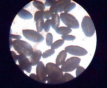 Pictures of Pollen (150x 300x 600x)