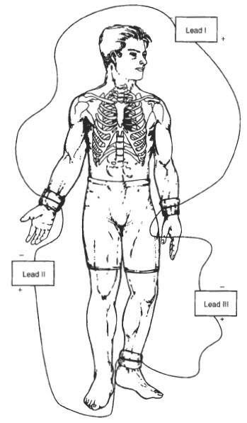 Диаграмма связи