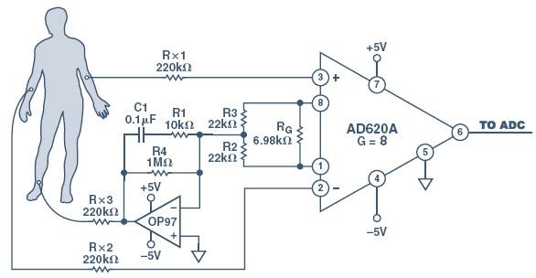 Рис. 5, схема ЭКГ