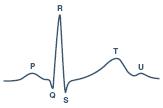 ECG Signal