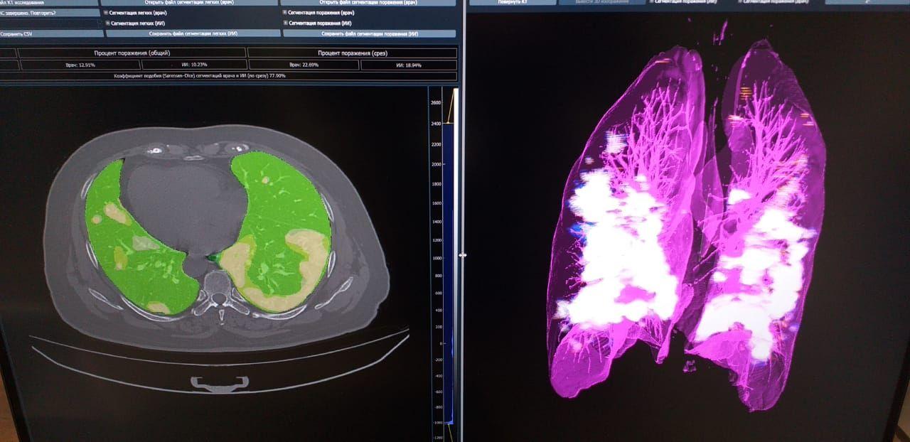 НТЦ «Модуль» разработал программное обеспечение для диагностики пневмонии